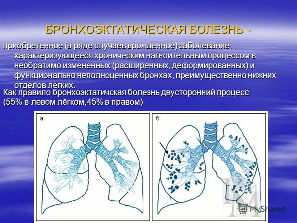 Хроническая бронхоэктатическая болезнь