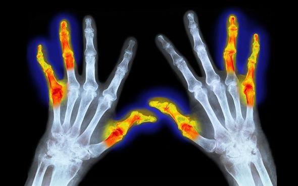 МКБ 10. Ревматоидный артрит: симптомы и лечение