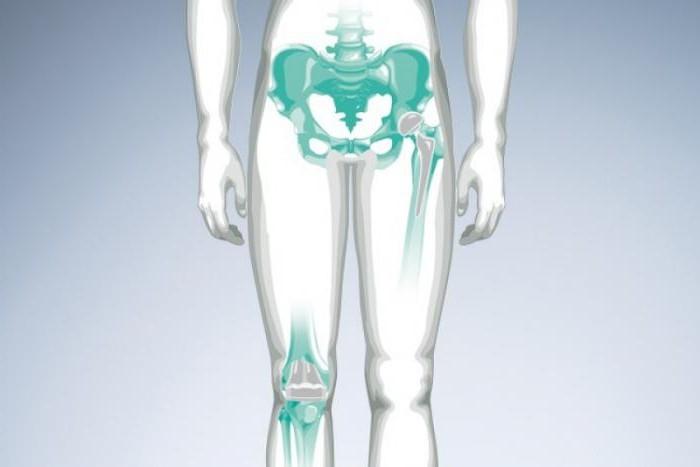 Щелкает тазобедренный сустав: возможные причины и особенности лечения