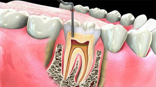 Нерв не хочу в зубе удалять или