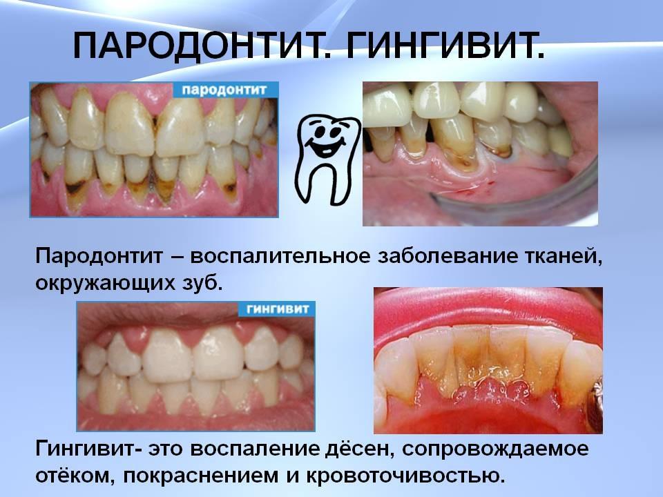 Воспалились десна шатаются зубы что делать