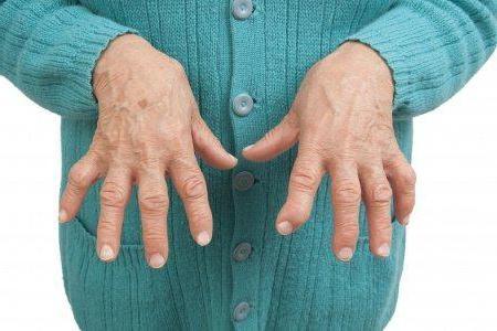Причины артроза запястья кисти руки