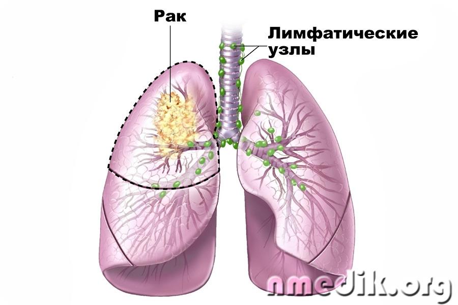 Народное лечение рака легких ваша аптека вся природа!