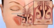 Перфорация носовой перегородки: причины, симптомы, методы лечения и последствия