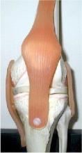 Почему болит колено сбоку, с внешней стороны? Как лечить?
