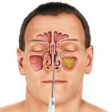 Эндоскопическая гайморотомия - что это такое? Ход операции и последствия