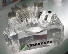 """Импланты """"Штрауман"""": особенности, виды и отзывы"""