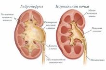 Гидронефроз почки лечение, питание, последствия