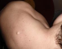Липома на спине