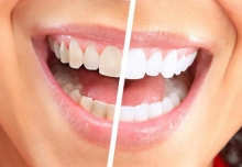 Система отбеливания зубов Global White: отзывы. Global White: плюсы и минусы