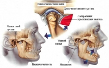 Воспаление челюстного сустава: причины и лечение