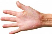 Почему кожа на руках облазит и как с этим бороться?