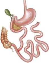 Синдром короткой кишки: симптомы, лечение