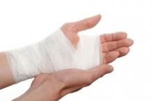 Растяжение мышц руки - лечение