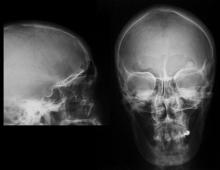 Остеоид-остеома кости: симптомы, диагностика и схема лечения