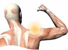 Плексопатія плечевого сплетения: симптомы и лечение