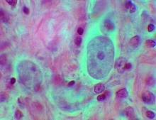 Самые распространенные протозойные инфекции