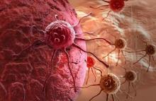Рак десен: описание, причины, симптомы, стадии и особенности лечения