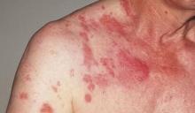 Сыпь при скарлатине: фото, лечение, профилактика заболевания