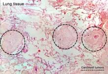 Карциноидный синдром: признаки, диагностика и лечение