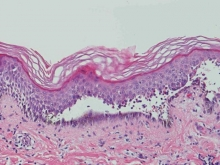 Вульгарная пузырчатка: причины, симптомы, лечение, препараты. Аутоиммунные заболевания