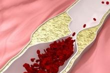 Стенозирующий Атеросклероз: симптомы и лечение