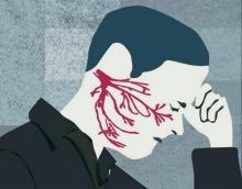 Что делать, если воспален тройничный нерв? Лечение в домашних условиях народными средствами