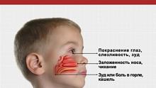 Лечение аллергии - причины, особенности и основные направления в лечении заболевания