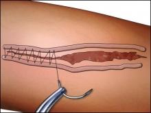 Хирургические швы: виды и способы наложения