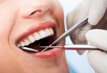Показания к удалению зуба при периодонтите