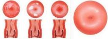 Эрозия шейки матки у нерожавших девушек: причины, симптомы, лечение