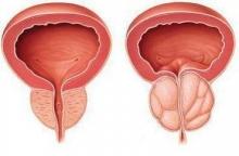 Диагностика простатита у мужчин - что нужно знать?