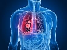Народные методы лечения злокачественных опухолей легких