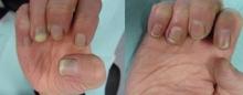 Кандидоз ногтей: симптомы, лечение