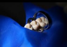 Коффердам - это Применение коффердама в стоматологии