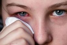 Глаза опухли и чешутся: причины и лечение