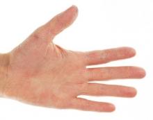 Покраснение и зуд на руках и ногах: лечение