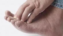 Что делать если пальцы на ногах чешутся? Причины зуда