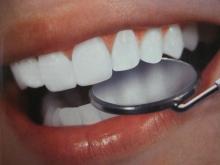 Лазерное отбеливание зубов - гигиена и эстетика, гель, лазерное отбеливание зубов, процедура
