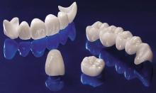 Преимущества керамических коронок - протезы и импланты, керамические коронки, протезы