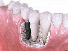 """Протезирование зубов из металлокерамики: от """"родных"""" не отличишь - протезы и импланты, метелокераміка, протезирование зубов"""