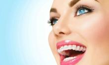 Сапфировые брекеты: преимущества и недостатки - гигиена и эстетика, конструкция, недостатки, преимущества, сапфировые брекеты