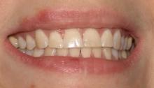 Тетрациклиновые зубы - лечение, лечение, тетрациклин, тетрациклиновые зубы, окрашивание зубов
