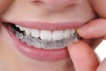 Тренируем зубы - гигиена и эстетика, брекеты, исправление прикуса, пластины, трейнер