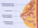 Мастит - симптомы воспалительного процесса молочной железы, причины груднице, виды, лечение