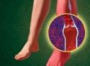 Что такое ангиопатия нижних конечностей? Как ее лечить?