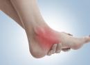 Голеностопный сустав опухает и болит: как лечить? Причины боли в голеностопном суставе