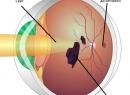 Ретинопатия и диабетическая ретинопатия