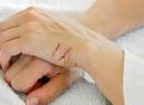 """Царапины на руках: причины, лечение, препараты. Крем """"Спасатель"""": инструкция по применению"""