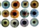 Для чего проводится операция по изменению цвета глаз?